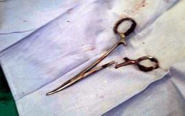 Забытые ножницы извлекли из желудка